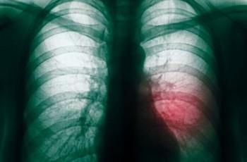 Иллюстрация к статье - Вниманию пациентов с ALK-позитивным раком легкого!